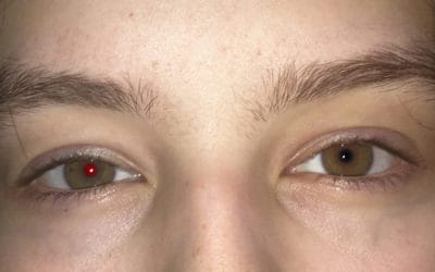 How to Remove Red Eyes in Photoshop