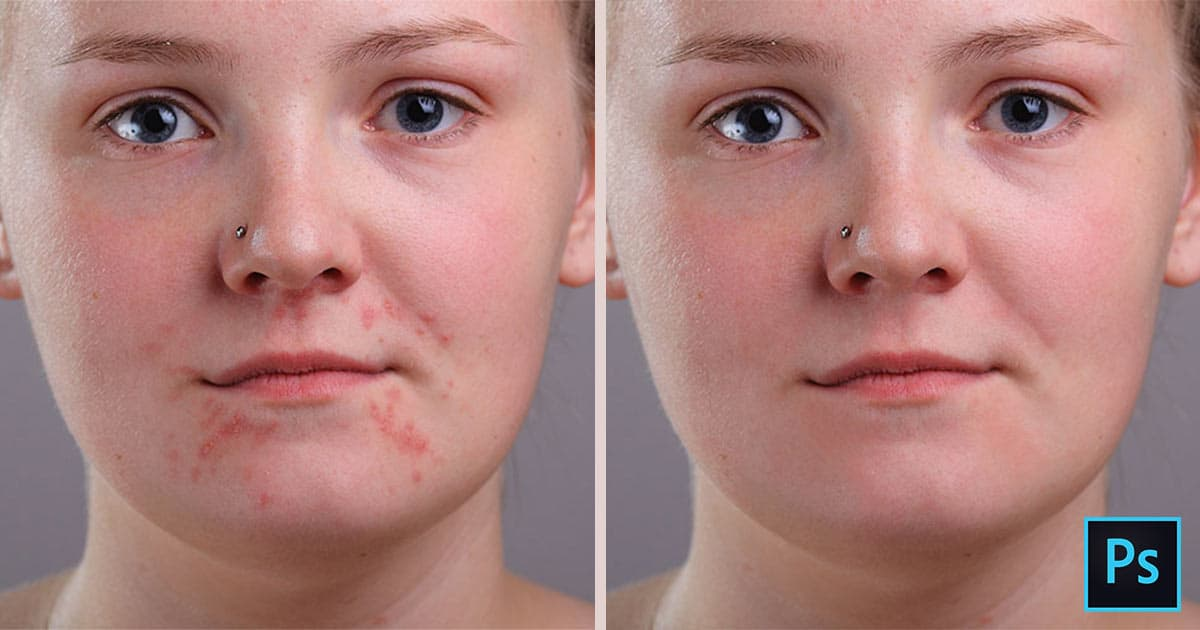 Remove Acne and Blemishes in Photoshop Using the Spot Healing Brush